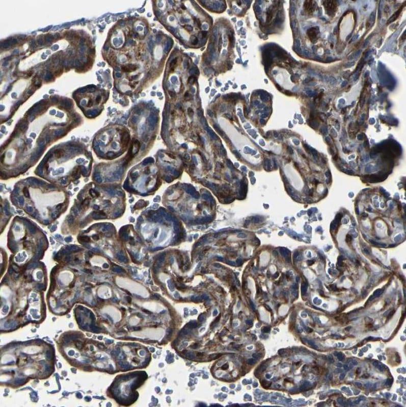 Immunohistochemistry (Formalin/PFA-fixed paraffin-embedded sections) - Anti-Myoferlin antibody (ab224091)