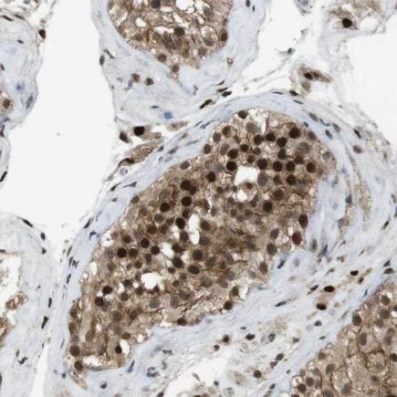 Immunohistochemistry (Formalin/PFA-fixed paraffin-embedded sections) - Anti-Orai3 antibody (ab224095)