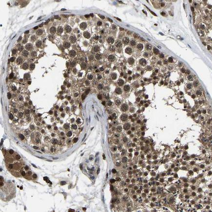 Immunohistochemistry (Formalin/PFA-fixed paraffin-embedded sections) - Anti-RRP1B antibody (ab224105)