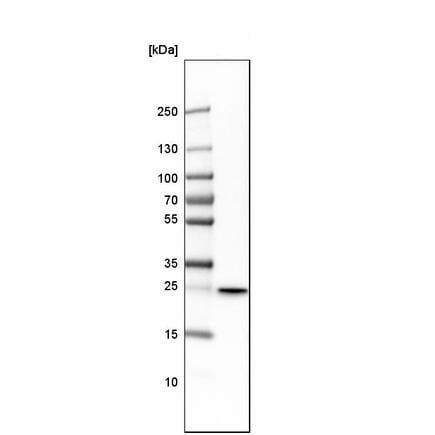 Western blot - Anti-PSPH antibody (ab224110)