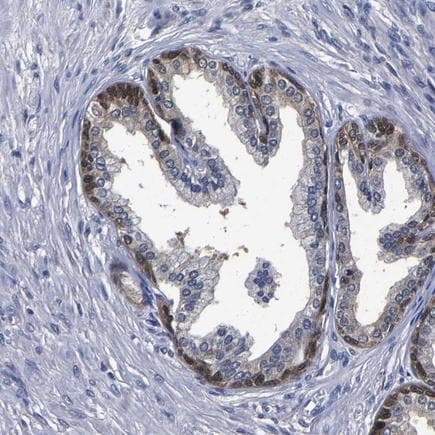 Immunohistochemistry (Formalin/PFA-fixed paraffin-embedded sections) - Anti-PSPH antibody (ab224110)