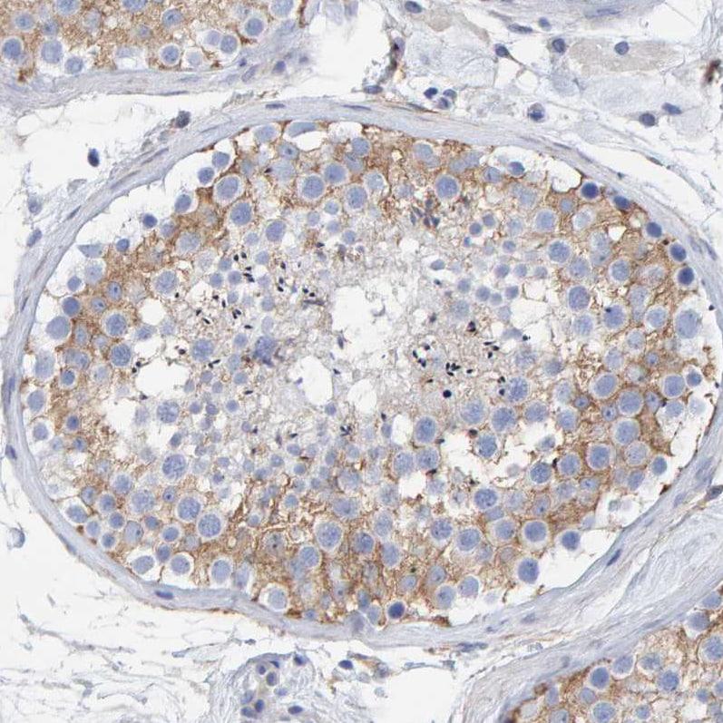 Immunohistochemistry (Formalin/PFA-fixed paraffin-embedded sections) - Anti-MAP1B antibody (ab224115)