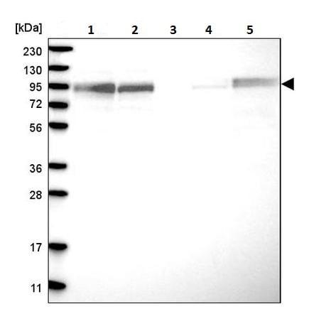 Western blot - Anti-FAM129B antibody (ab224116)