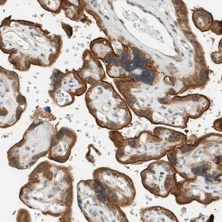 Immunohistochemistry (Formalin/PFA-fixed paraffin-embedded sections) - Anti-FAM129B antibody (ab224116)