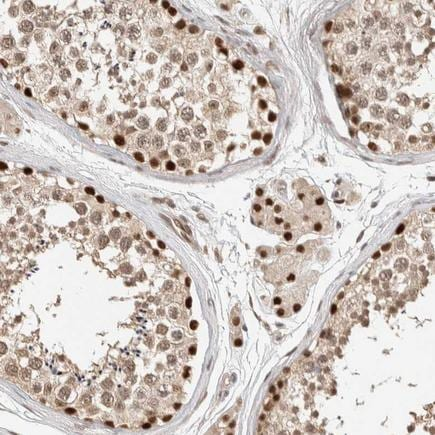 Immunohistochemistry (Formalin/PFA-fixed paraffin-embedded sections) - Anti-PUS7 antibody (ab224119)