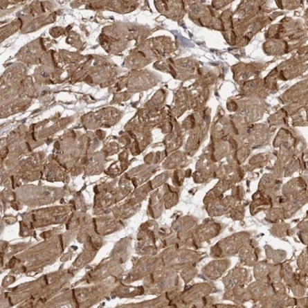 Immunohistochemistry (Formalin/PFA-fixed paraffin-embedded sections) - Anti-SORBS1 antibody (ab224129)