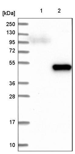 Western blot - Anti-DHPS/DHS antibody (ab224134)