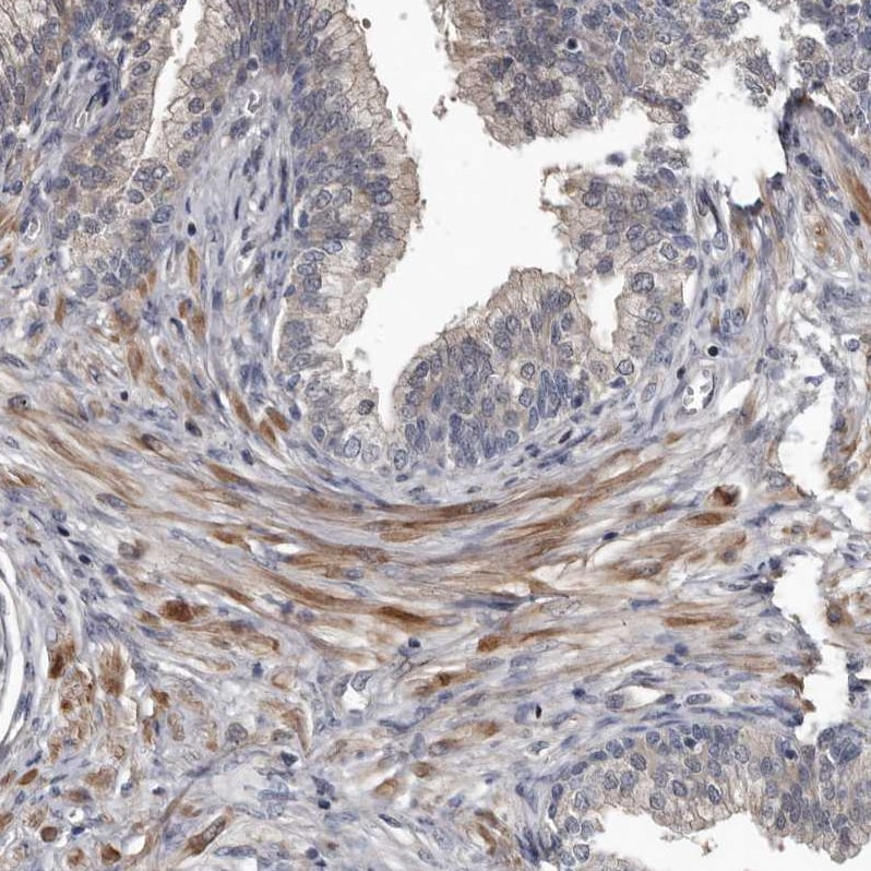Immunohistochemistry (Formalin/PFA-fixed paraffin-embedded sections) - Anti-DHPS/DHS antibody (ab224134)