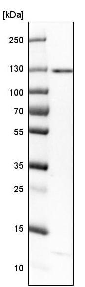 Western blot - Anti-RECQL5 antibody (ab224135)