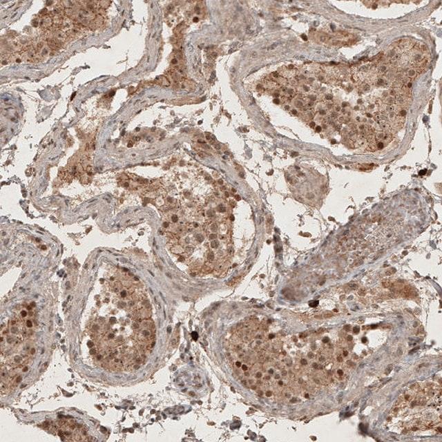 Immunohistochemistry (Formalin/PFA-fixed paraffin-embedded sections) - Anti-RECQL5 antibody (ab224135)