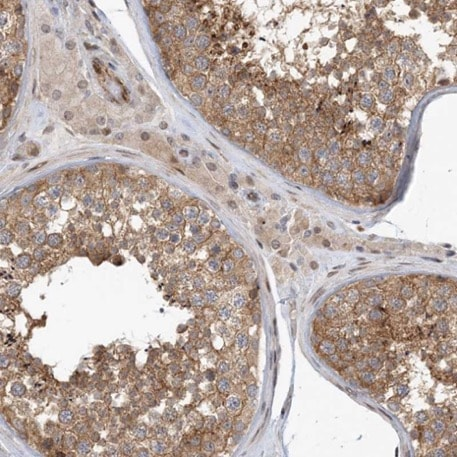 Immunohistochemistry (Formalin/PFA-fixed paraffin-embedded sections) - Anti-MAPKBP1 antibody (ab224137)