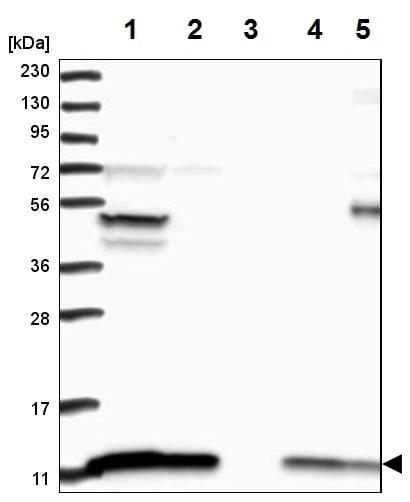 Western blot - Anti-ATP5J antibody (ab224139)