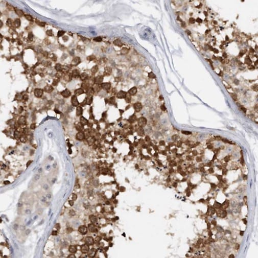Immunohistochemistry (Formalin/PFA-fixed paraffin-embedded sections) - Anti-HAGE antibody (ab224141)