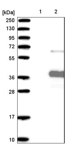 Western blot - Anti-ANKRD45 antibody - C-terminal (ab224143)