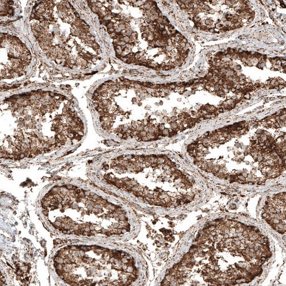 Immunohistochemistry (Formalin/PFA-fixed paraffin-embedded sections) - Anti-cGAS antibody (ab224144)