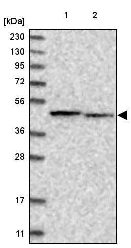 Western blot - Anti-PAICS/PAIS antibody (ab224155)