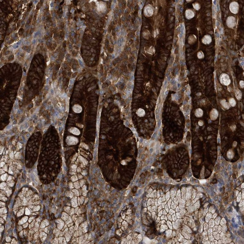 Immunohistochemistry (Formalin/PFA-fixed paraffin-embedded sections) - Anti-PAICS/PAIS antibody (ab224155)