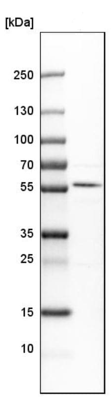 Western blot - Anti-MICU1 antibody (ab224161)