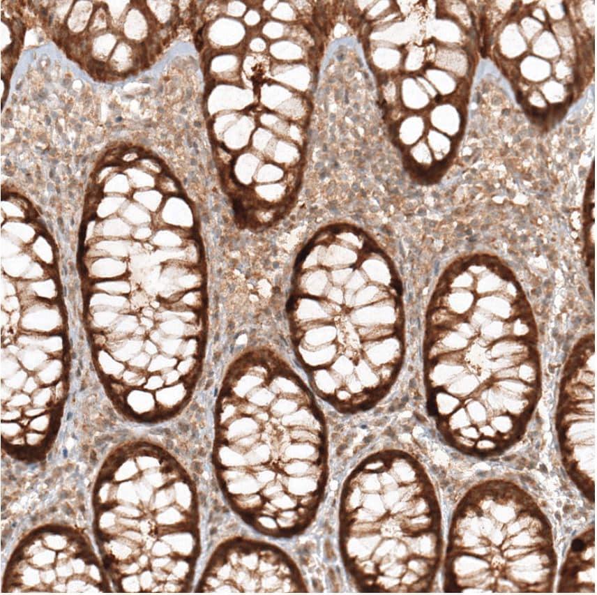 Immunohistochemistry (Formalin/PFA-fixed paraffin-embedded sections) - Anti-MICU1 antibody (ab224161)