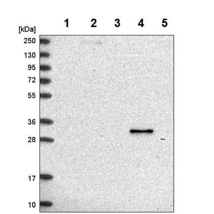 Western blot - Anti-Retinol dehydrogenase 16 antibody (ab224163)