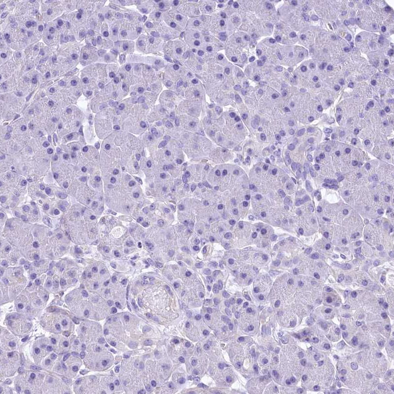 Immunohistochemistry (Formalin/PFA-fixed paraffin-embedded sections) - Anti-Retinol dehydrogenase 16 antibody (ab224163)