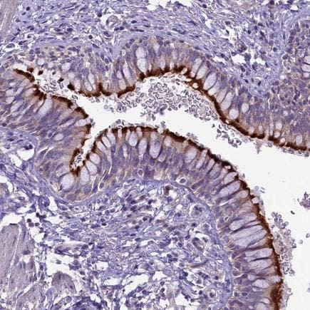 Immunohistochemistry (Formalin/PFA-fixed paraffin-embedded sections) - Anti-CD99L2 antibody (ab224164)