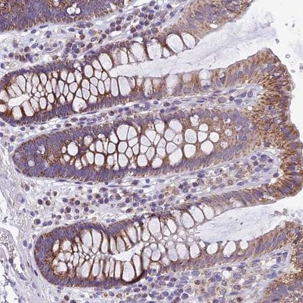 Immunohistochemistry (Formalin/PFA-fixed paraffin-embedded sections) - Anti-c20orf72 antibody (ab224169)
