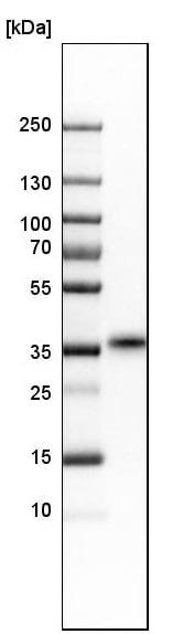 Western blot - Anti-TEX101 antibody (ab224174)