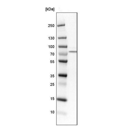 Western blot - Anti-ACSS1 antibody (ab224176)