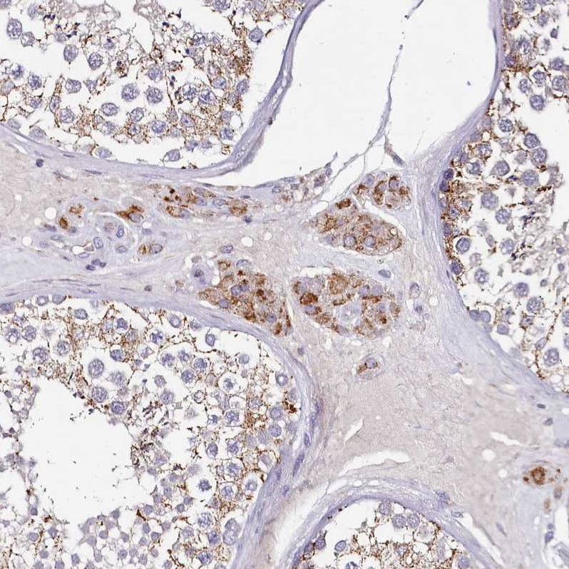 Immunohistochemistry (Formalin/PFA-fixed paraffin-embedded sections) - Anti-ACSS1 antibody (ab224176)