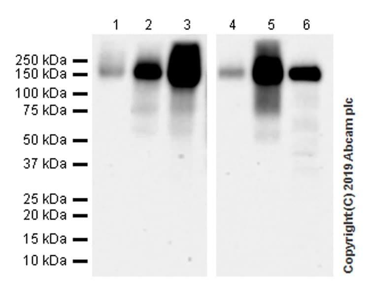 Western blot - Anti-CD103 antibody [EPR22590-27] (ab224202)