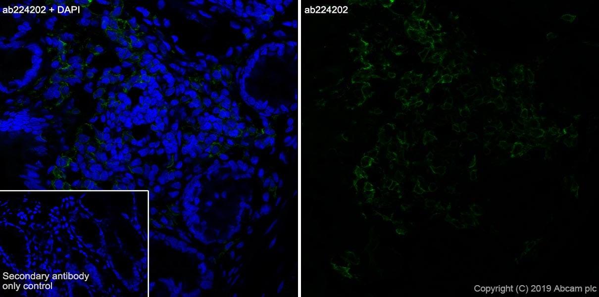 Immunohistochemistry (Frozen sections) - Anti-CD103 antibody [EPR22590-27] (ab224202)