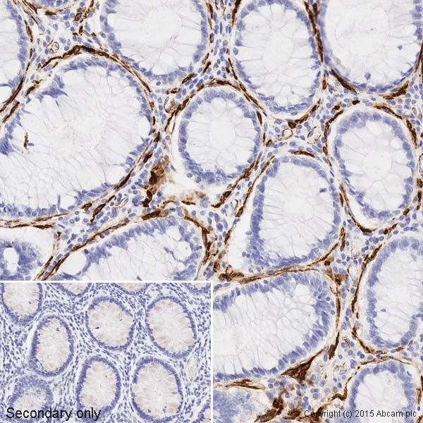 Immunohistochemistry (Formalin/PFA-fixed paraffin-embedded sections) - Anti-muscle Actin antibody [EPR8484] - BSA and Azide free (ab224207)