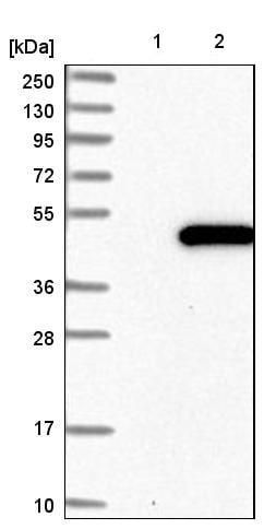 Western blot - Anti-PABPC5 antibody (ab224208)