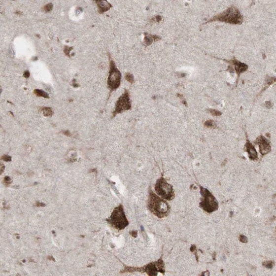 Immunohistochemistry (Formalin/PFA-fixed paraffin-embedded sections) - Anti-PABPC5 antibody (ab224208)