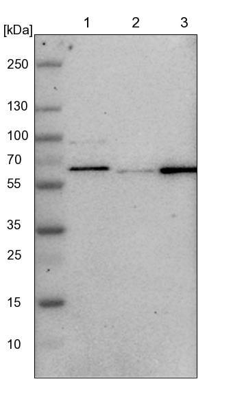 Western blot - Anti-T54 antibody (ab224209)
