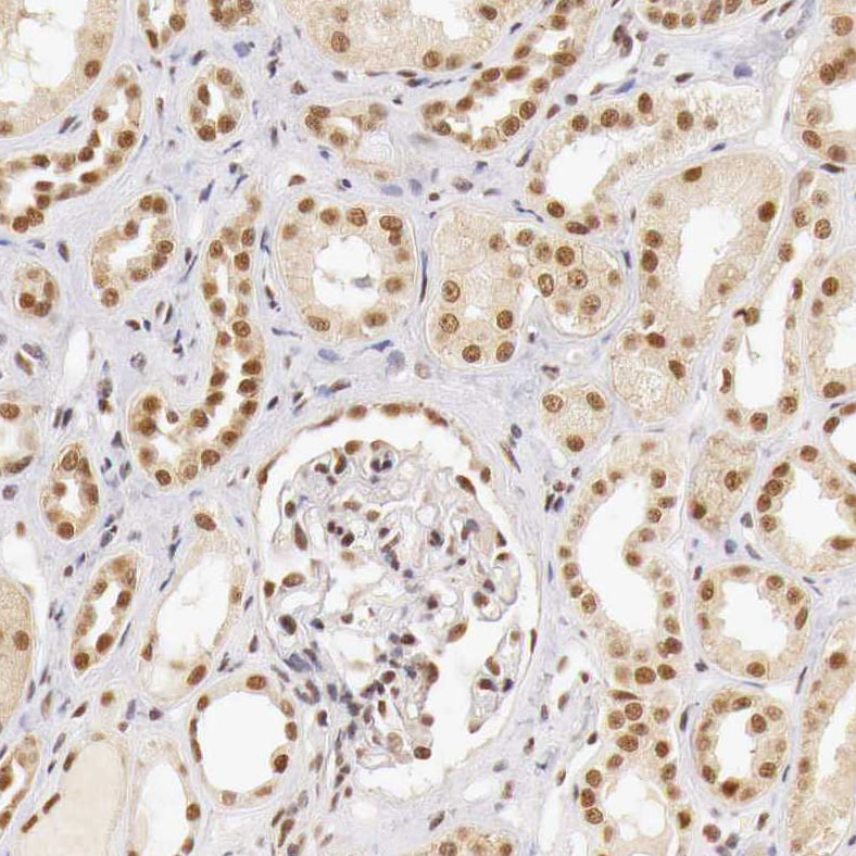 Immunohistochemistry (Formalin/PFA-fixed paraffin-embedded sections) - Anti-T54 antibody (ab224209)