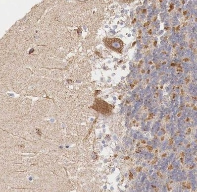 Immunohistochemistry (Formalin/PFA-fixed paraffin-embedded sections) - Anti-IDH3G antibody (ab224210)
