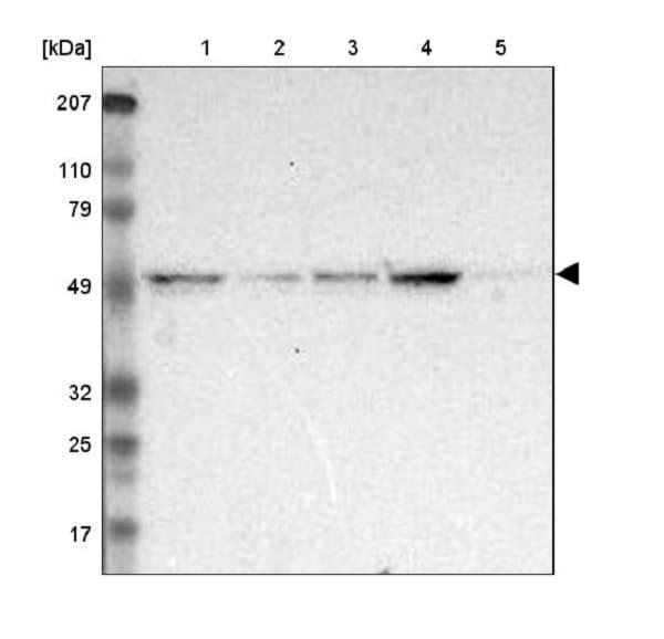 Western blot - Anti-XPNPEP3 antibody (ab224211)
