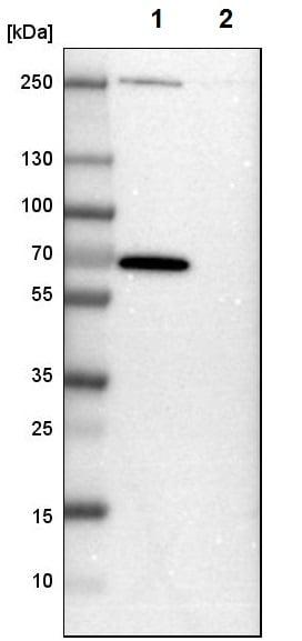 Western blot - Anti-GABA A Receptor alpha 3/GABRA3 antibody (ab224214)