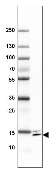 Western blot - Anti-SYNJ2BP antibody - N-terminal (ab224217)