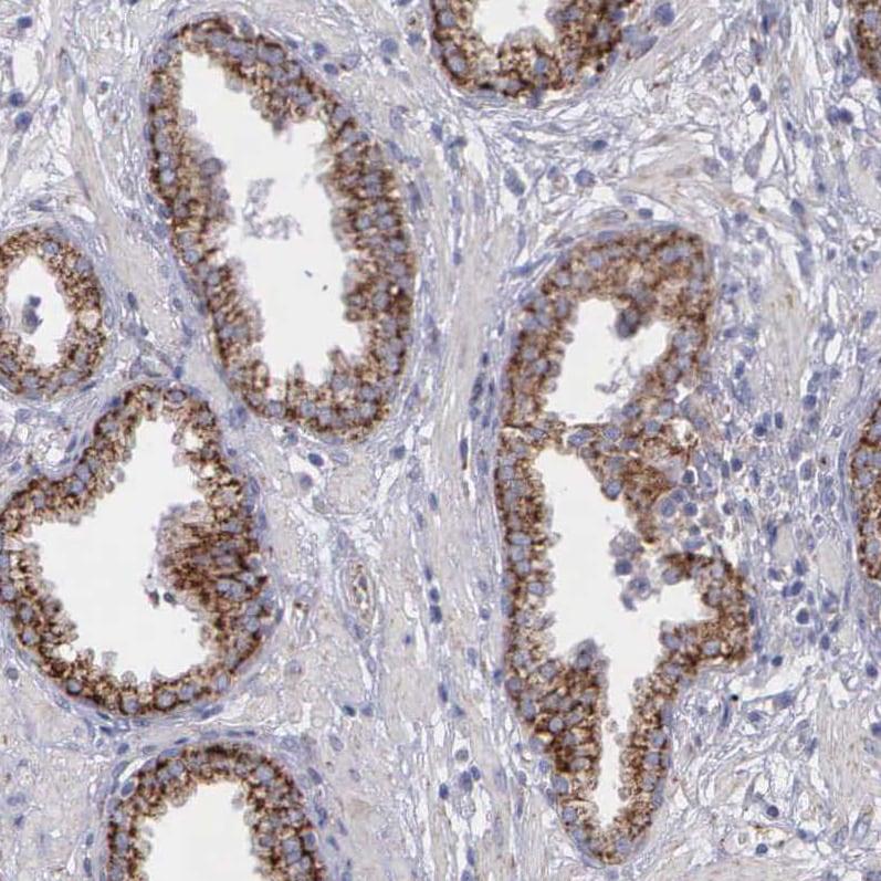 Immunohistochemistry (Formalin/PFA-fixed paraffin-embedded sections) - Anti-SYNJ2BP antibody - N-terminal (ab224217)