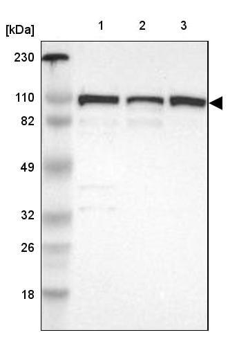 Western blot - Anti-CTAGE5 antibody (ab224218)