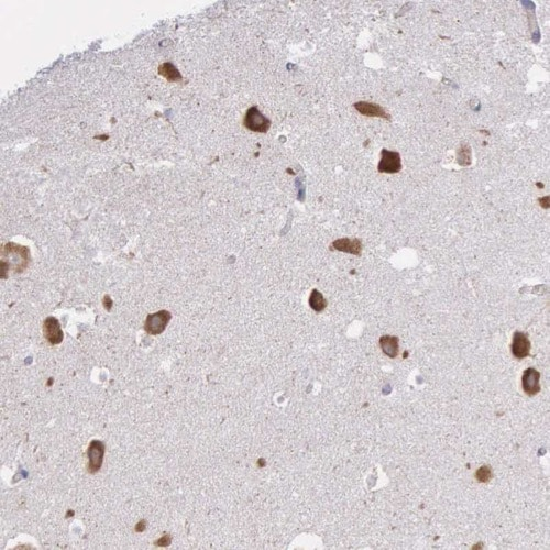 Immunohistochemistry (Formalin/PFA-fixed paraffin-embedded sections) - Anti-CTAGE5 antibody (ab224218)