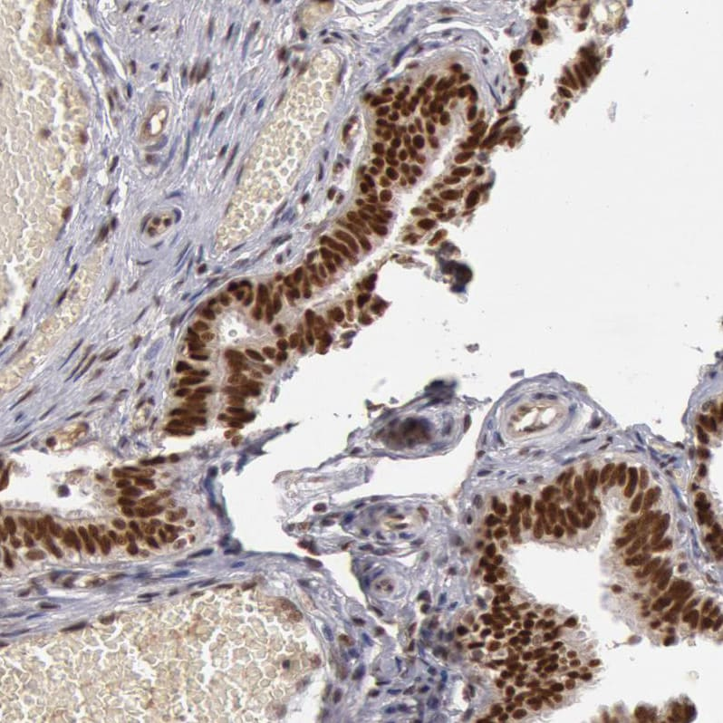 Immunohistochemistry (Formalin/PFA-fixed paraffin-embedded sections) - Anti-SMEK2 antibody (ab224222)