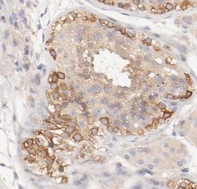 Immunohistochemistry (Formalin/PFA-fixed paraffin-embedded sections) - Anti-DYNC1H1 antibody (ab224225)