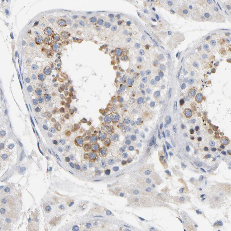 Immunohistochemistry (Formalin/PFA-fixed paraffin-embedded sections) - Anti-VIP36 antibody (ab224227)