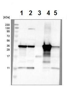 Western blot - Anti-ACAA1/Beta-ketothiolase antibody (ab224235)