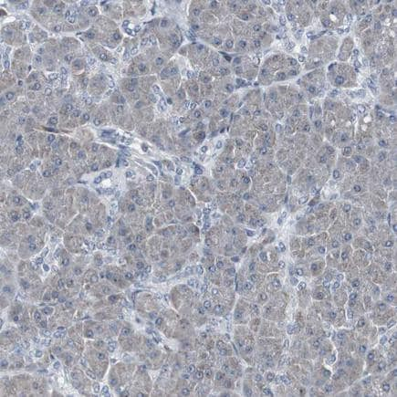 Immunohistochemistry (Formalin/PFA-fixed paraffin-embedded sections) - Anti-ACAA1/Beta-ketothiolase antibody (ab224235)