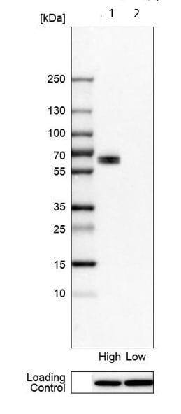 Western blot - Anti-LSR antibody (ab224237)